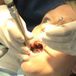 Endodonzia - cura canalare e devitalizzazioni Torino Brandizzo