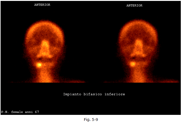 diagnostica-nucleare-4