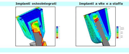 implantologia a carico immediato, impianti a vite, implantologia atraumatica, implantologia senza dolore