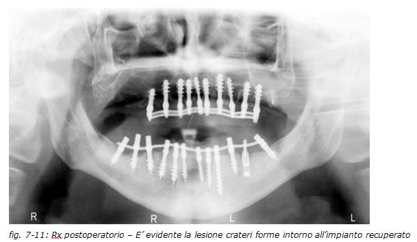 implantologia dentale, protesi ceramica, implantologia carico immediato, dentista