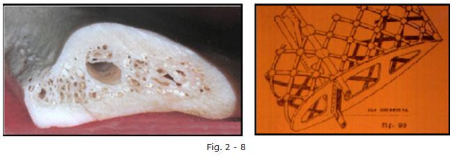 implantologia funzionale, dentista, dentiera, carie, impianti dentali, protesi fissa, protesi dentale, impianti a vite, ortodonzia, intarsi in ceramica