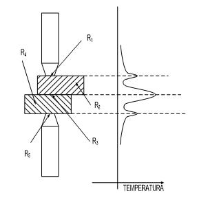 implantologia-elettrosaldata-titanio-protesi-dentale-estetica-fissazione-dentiere