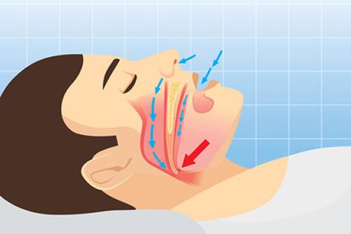 Problemi di russamento - Centro Chirurgico clinica odontoiatrica Brandizzo