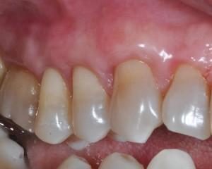 DOPO - Controllo a 6 mesi dopo trattamento in microchirurgia per gravi recessioni gengivali