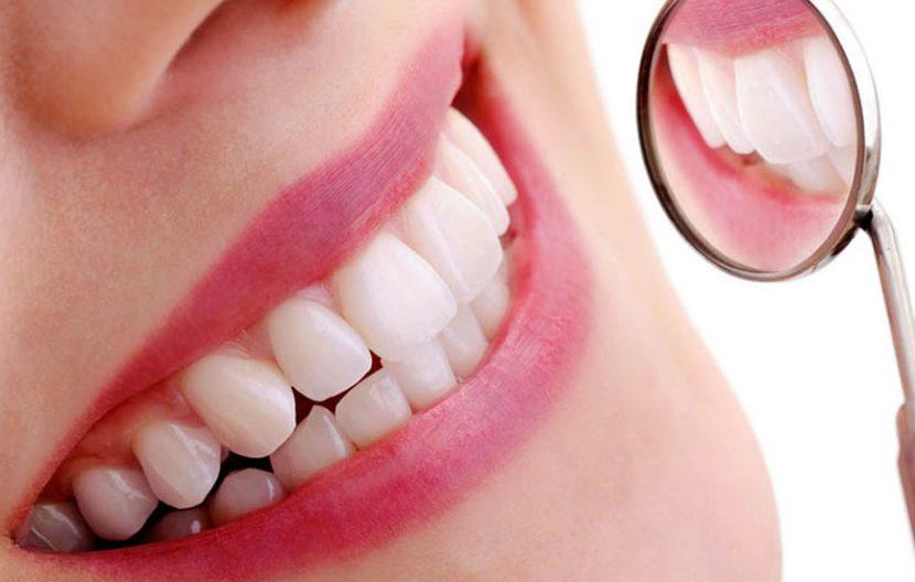 Sbiancamento dentale professionale Centro Chirrugico
