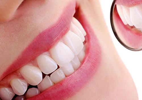 Come avere denti bianchi in pochi minuti