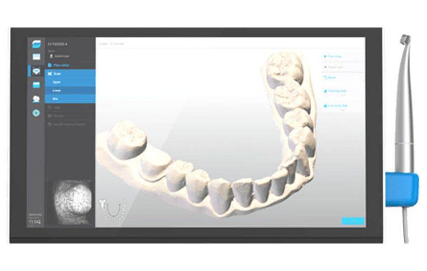 Impronte orali digitali Centro Chirurgico