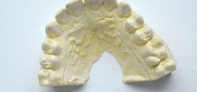 Impronte dentali digitali