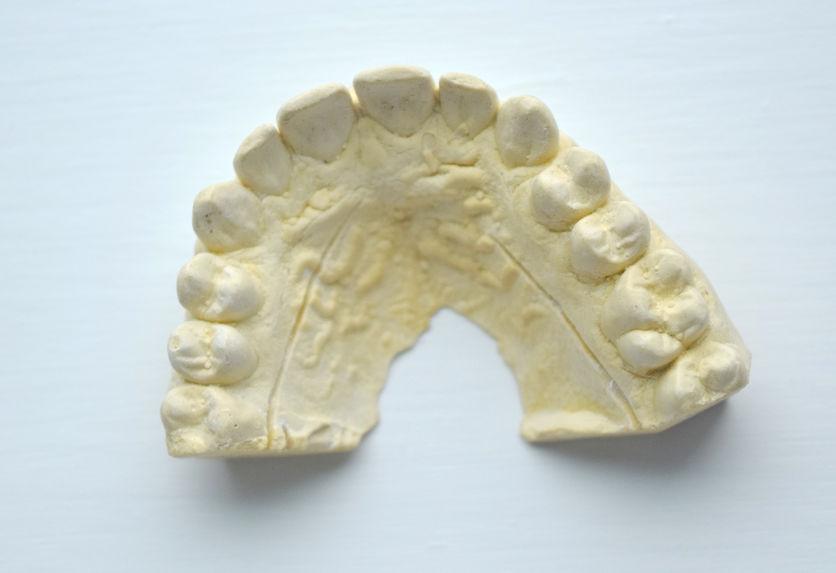 Impronte dentali gesso
