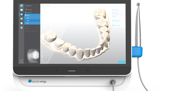Impronta dentale digitale 3d