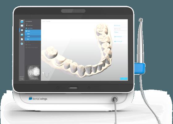 Impronta dentale 3d con manipolo intraorale Dental Wings