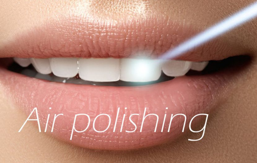 Air polishing professionale