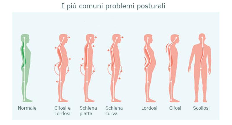 Principali problemi posturali