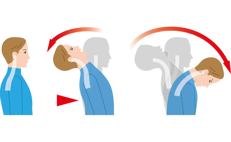 Colpo di frusta e disturbi temporo-mandibolari