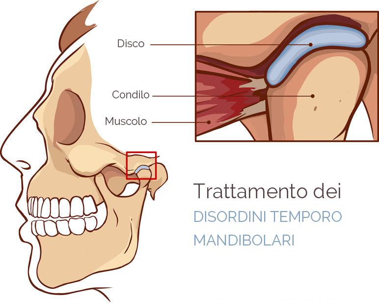 trattamento dei disturbi temporo mandibolari